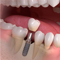 Individual Tooth Replacement